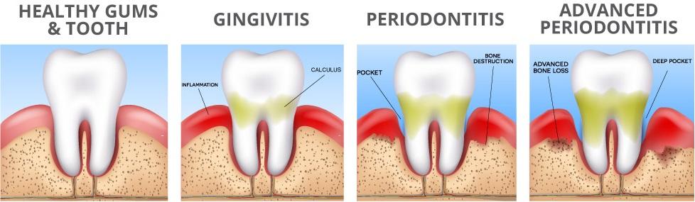 Deep Cleaning For Gum Disease Docdentalsmile